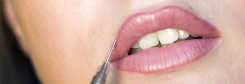 La micropigmentación de labios duele, por más bonitas que te presenten las fotos
