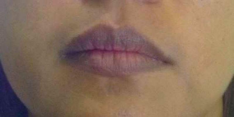 Por qué se ponen los labios morados