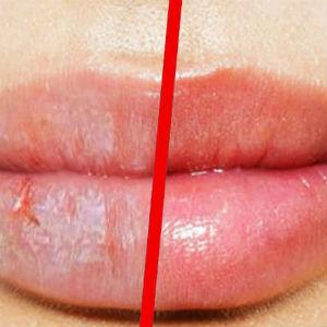 Cómo evitar los labios secos y cortados
