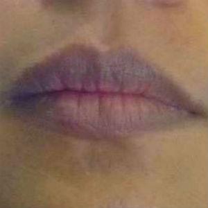 ¿Por qué se ponen los labios morados?